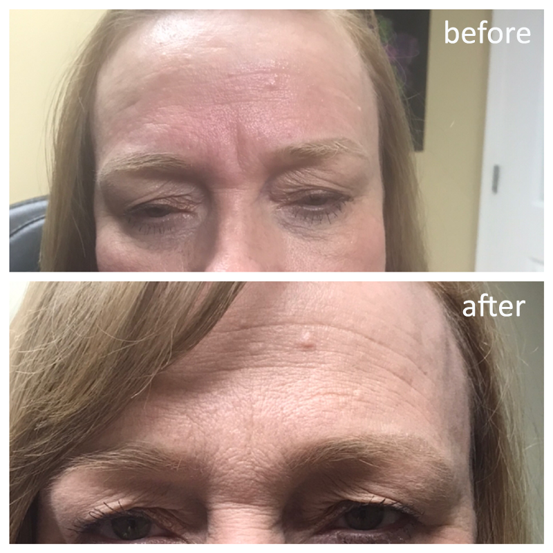 Before and after juvaderm ultra treatment