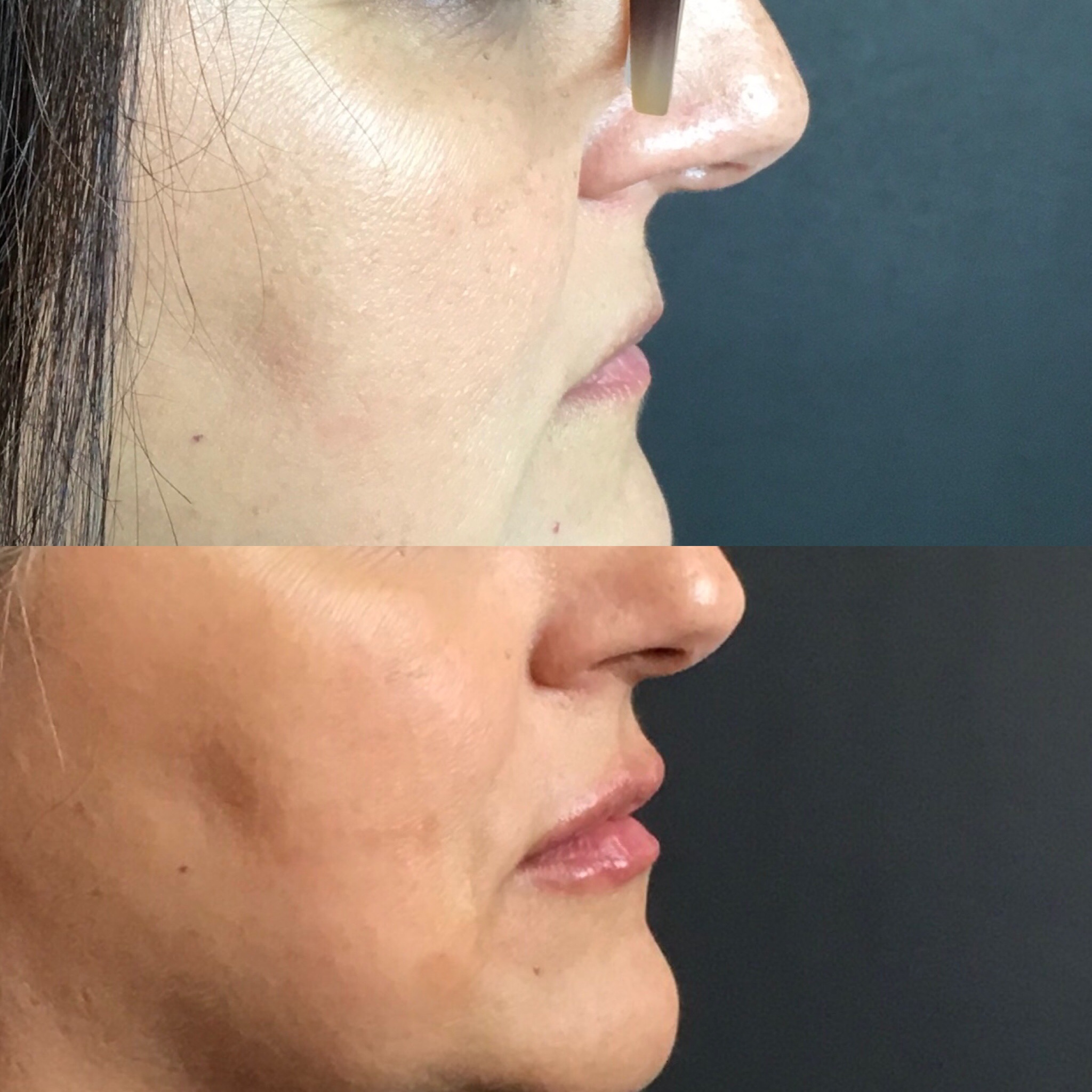 Lip augmentation with Filler and PDO thread