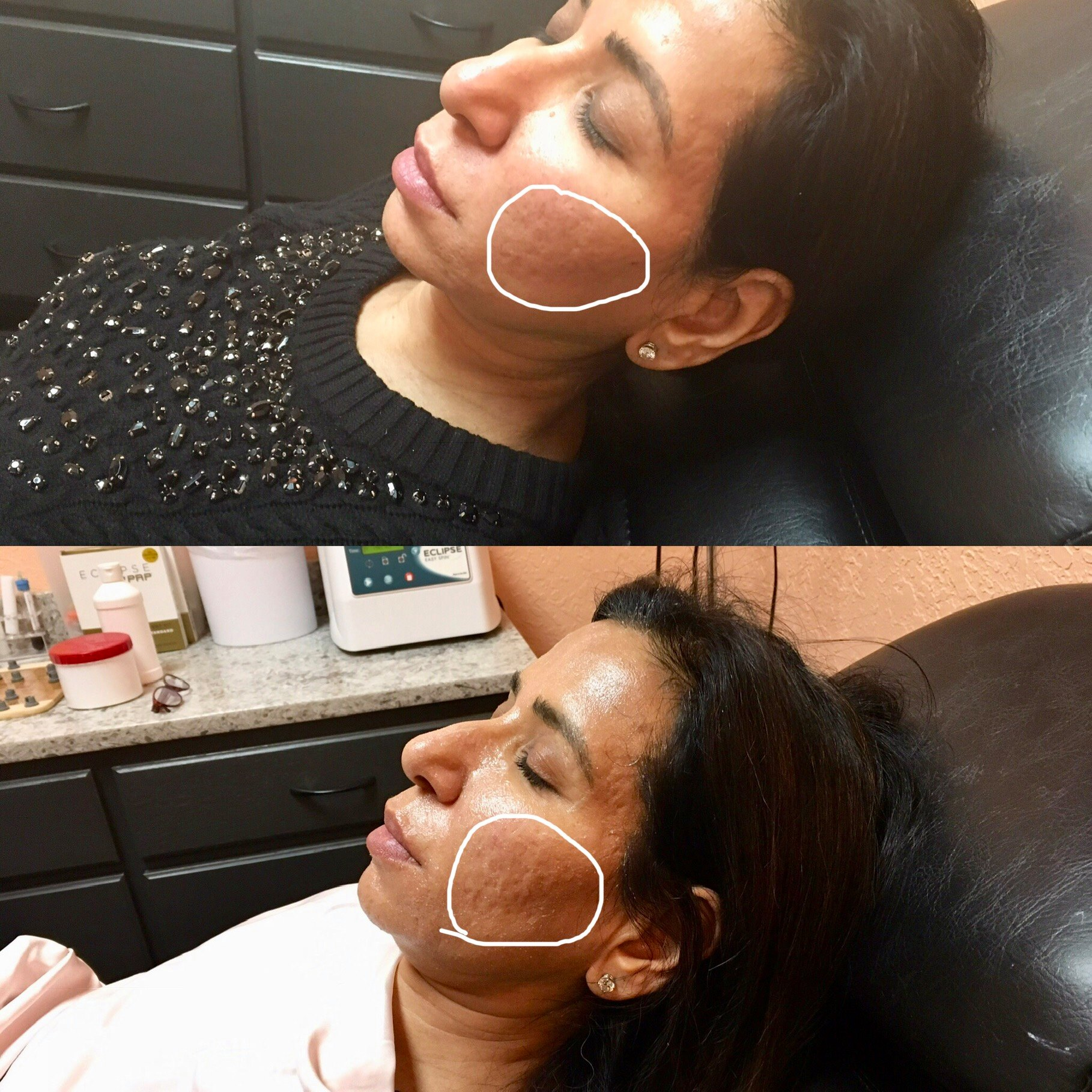 Microneedling at bodyrx louisville