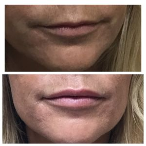Filler Before and After