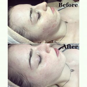Hydrafacials at bodyrx louisville