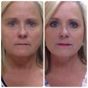 Before and After Liquid Face Lift