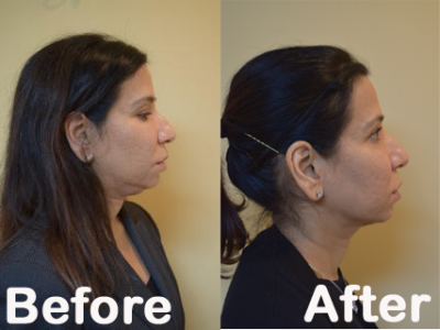 KYBELLA at bodyrx louisville