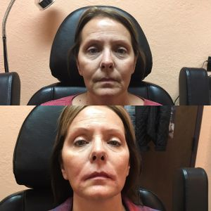 Restylane Silk and Lyft at bodyrx louisville