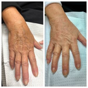 Before & After of Hand Fillers done by Stacey Koch APRN