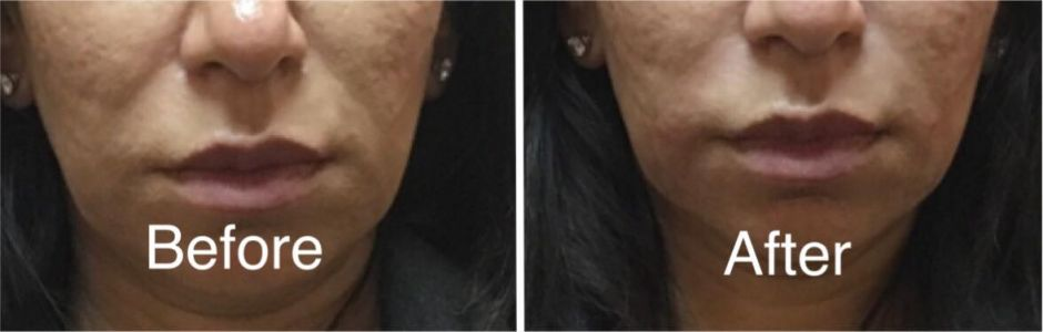 nasolabial folds at bodyrx louisville