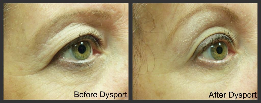 Dysport crows feet before and after