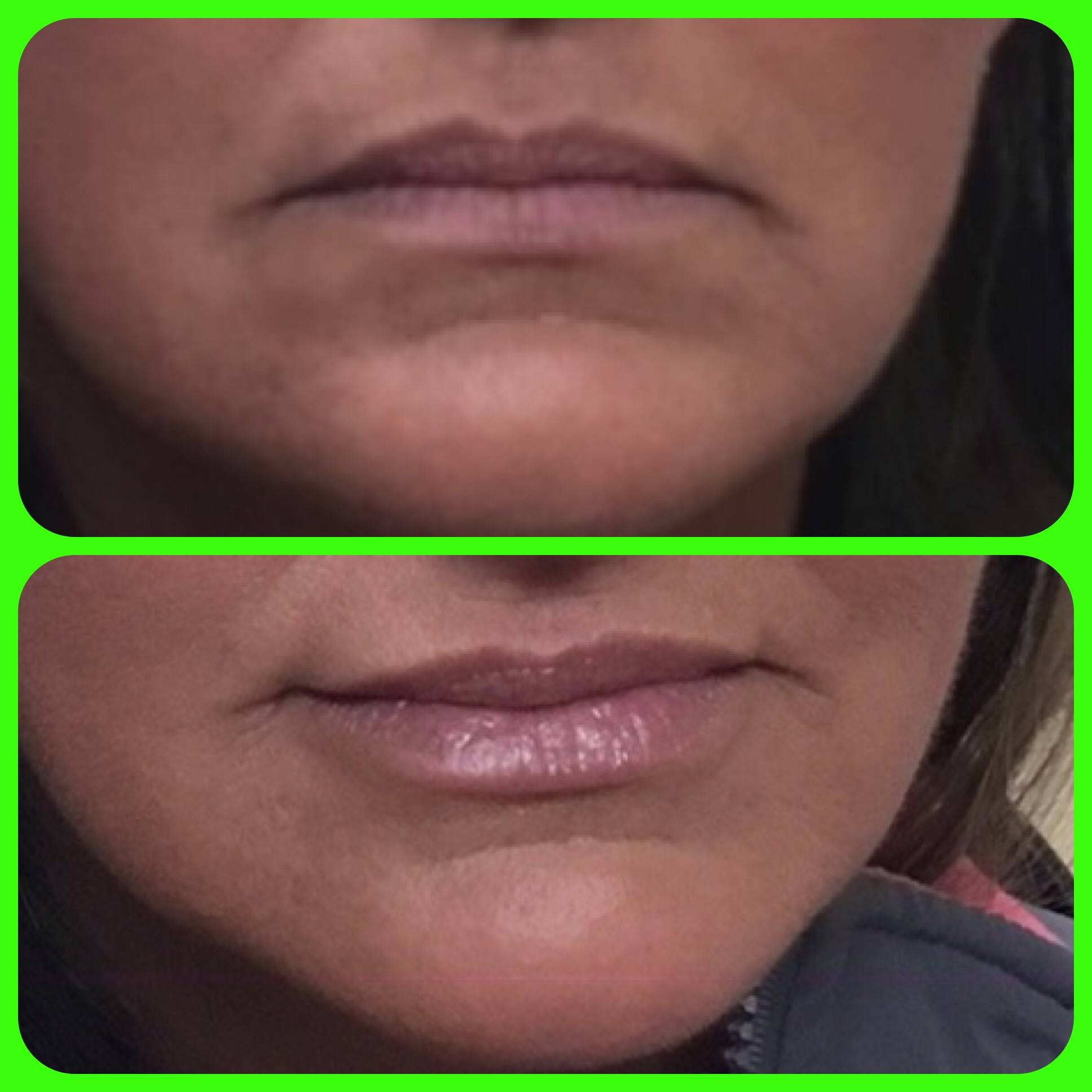 Juvederm lip filler before and after