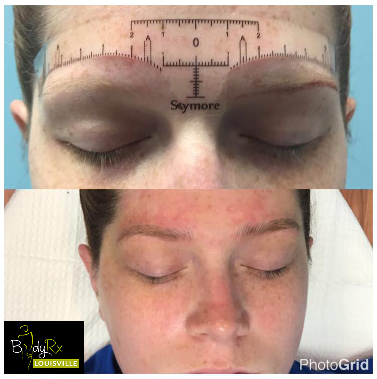 Microblading--at Bodyrx Louisville Oct10