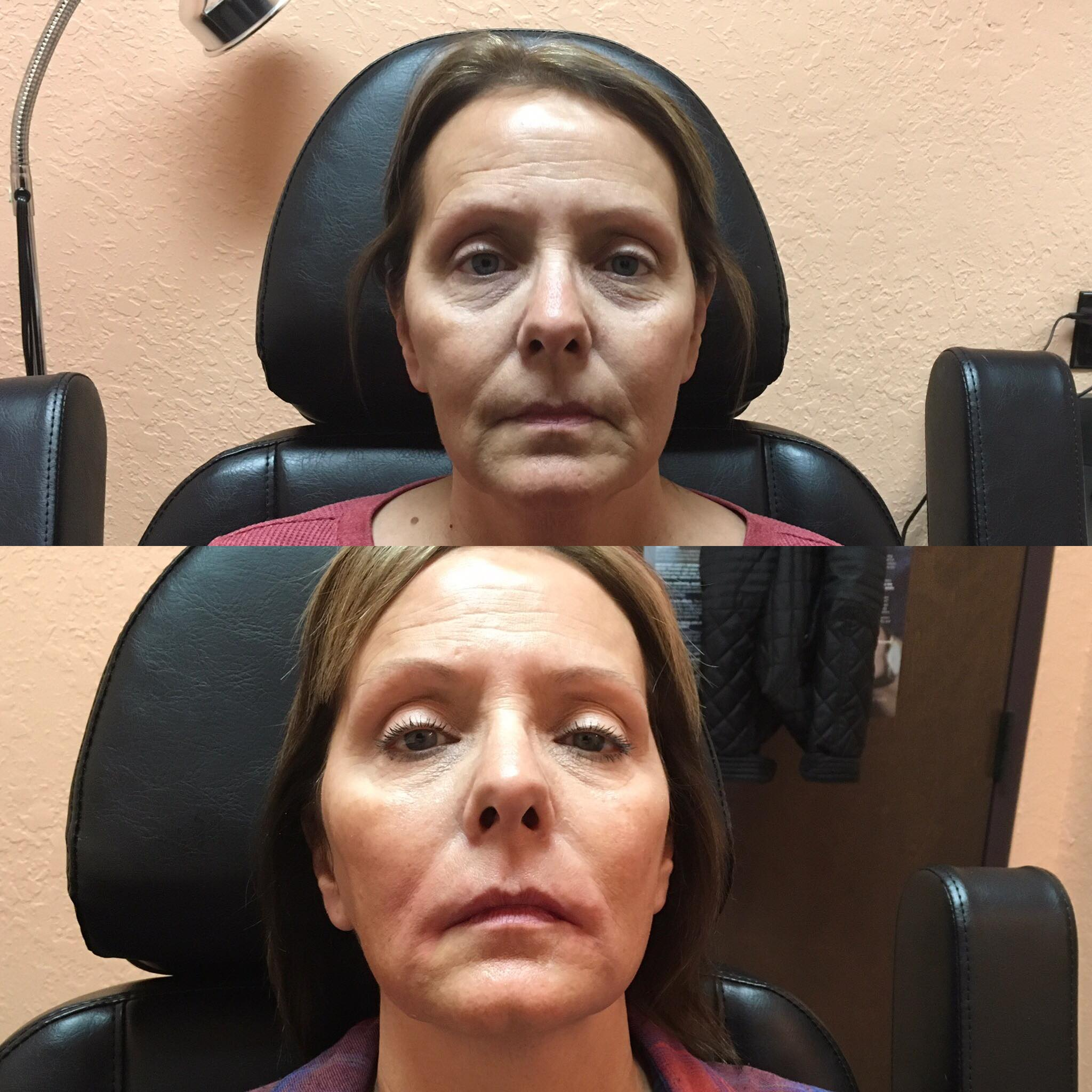 Restylane Silk and Lyft on cheeks and lips