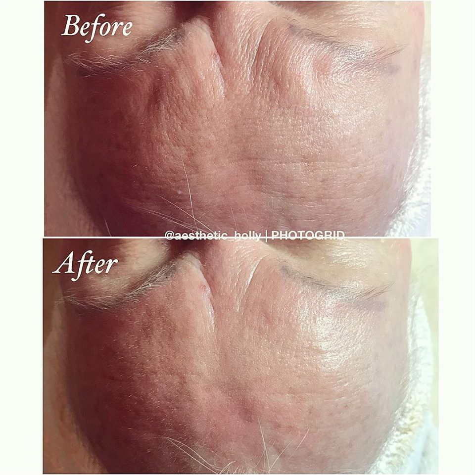 Before-after-hydrafacial