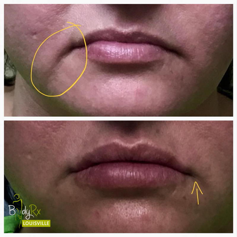 Lip Fliler at bodyrx louisville