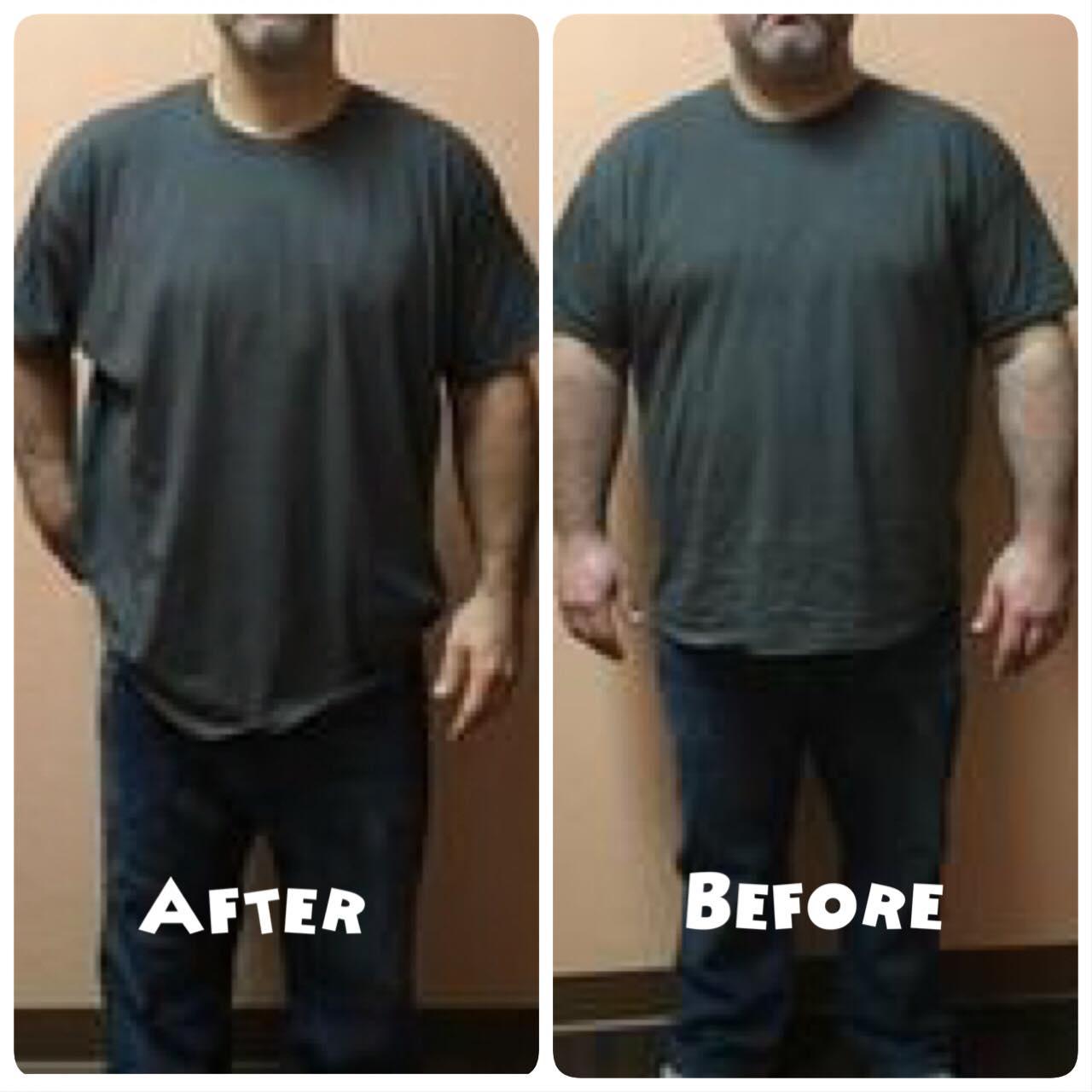 Lose Weight At Bodyrx Louisville