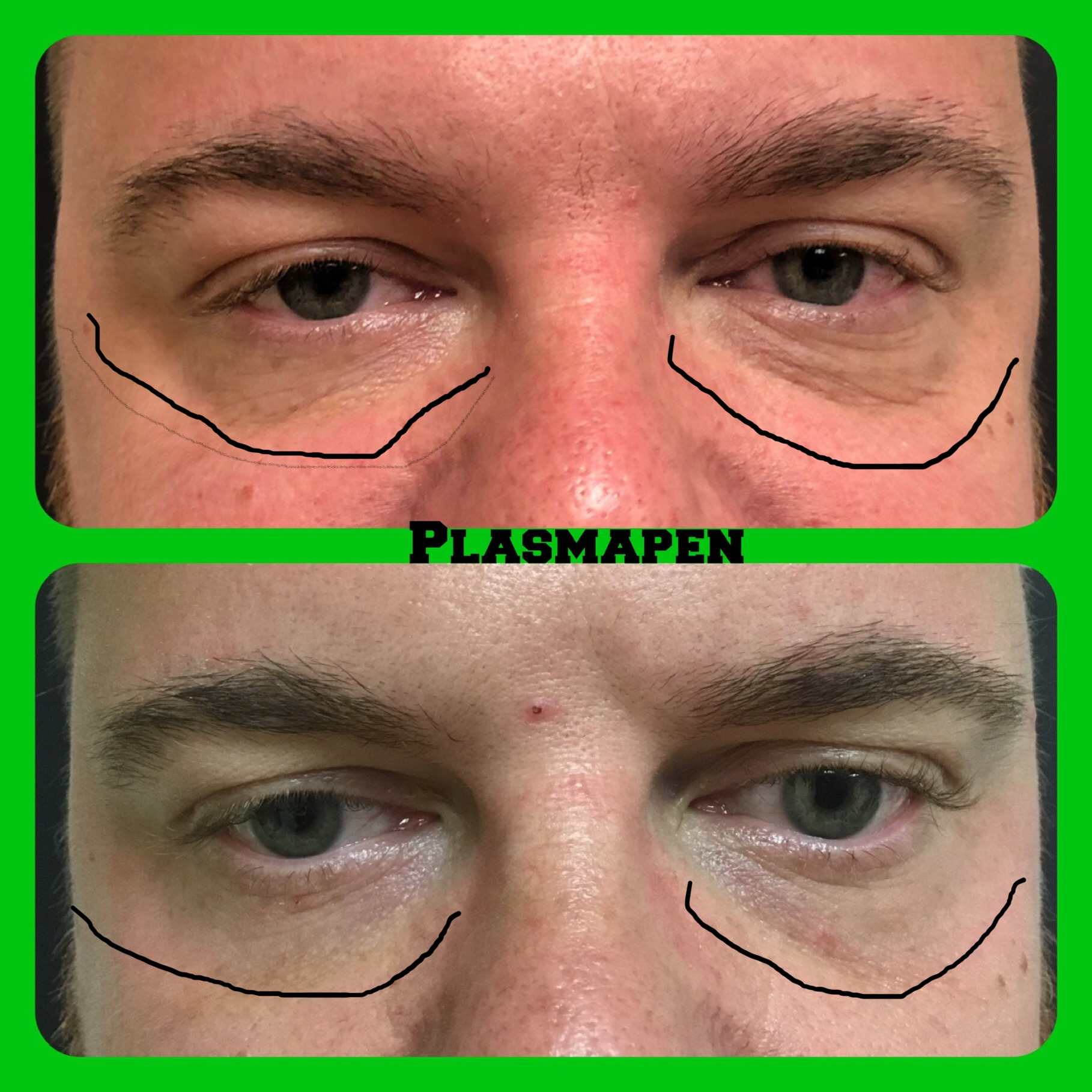 Before and after plasma pen under eye wrinkle treatment