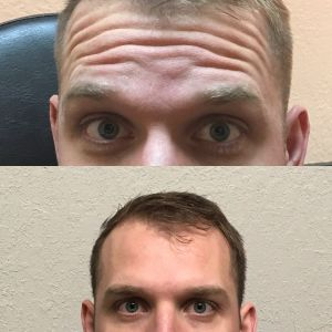 Before After Dysport Treatment