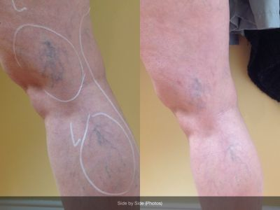 Sclerotherapy on the veins