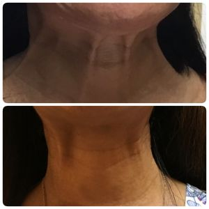 Platysmal Bands Injection before and after