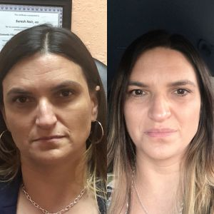 Restylane & Dysport on forehead and cheeks