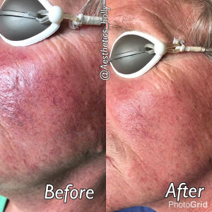 Before & After Laser Vein Removal