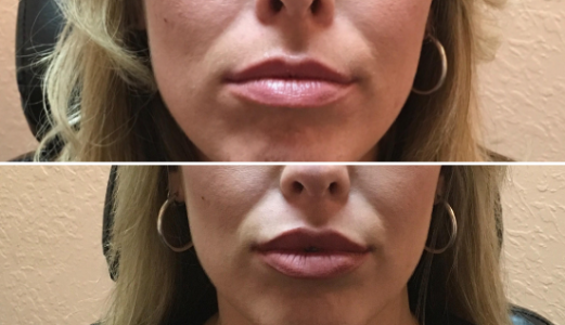 Before After Lips done by Dr. Sarita Nair