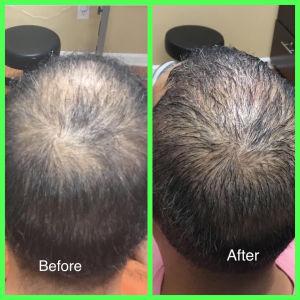 PRP for hair