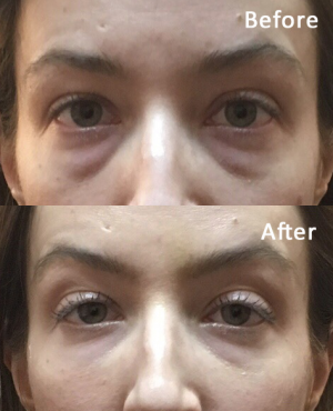 Juvaderm ultra Before After