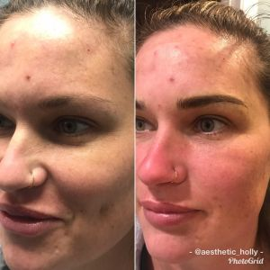 Microblading session at bodyrx louisville