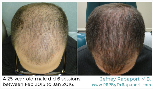 Prp Treatment For Hair Loss Louisville Ky