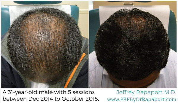 PRP treatment for hair loss in Louisville, KY